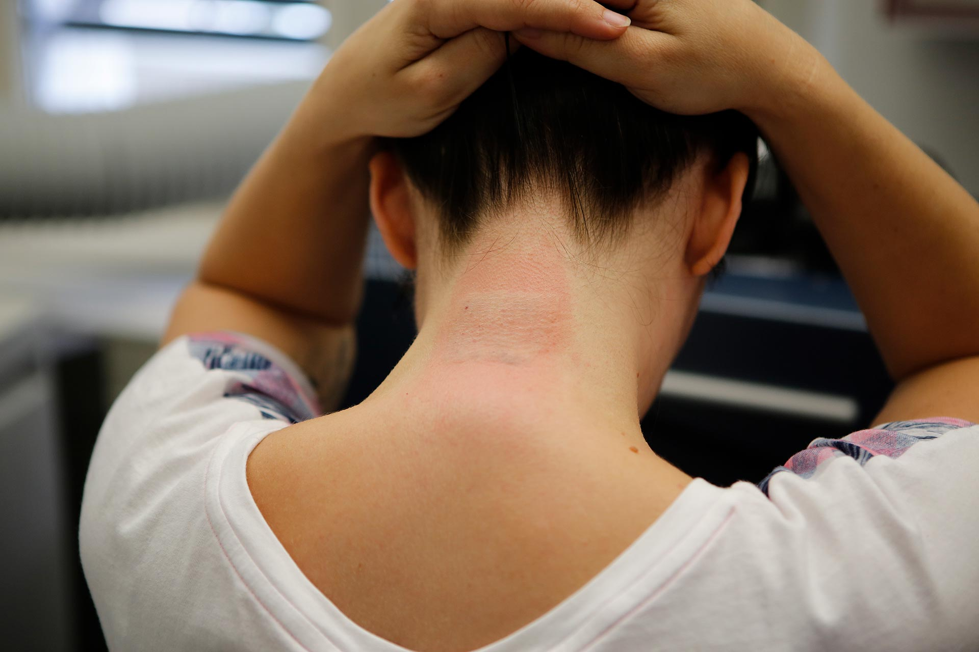 Wenn der Laser auf die Haut trifft, entsteht eine Art Miniexplosion, erklärt der Hautarzt.