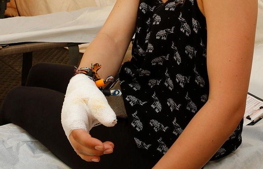 Carolin Mrosek hat sich ihre Hand am Gaskocher verbrannt.